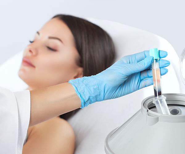 platelet rich plasma prp treatments miami med spa
